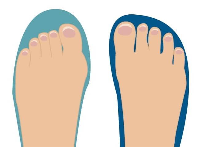 Is Your Toe Box Wide Enough? The Simple Test for Running ...