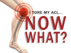I Tore My ACL… Now What?