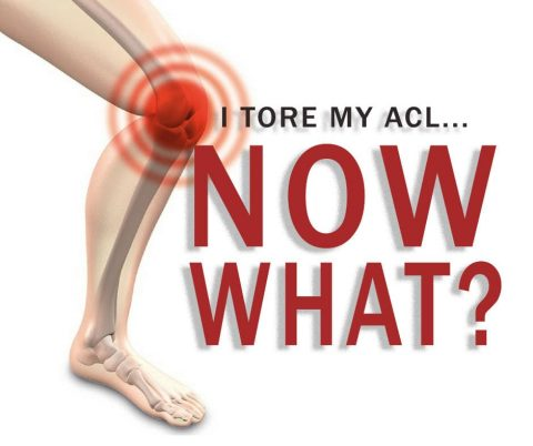 the risk prevention and treatment of acl injuries common among athletes Ankle sprains are the most common injuries among young athletes prevention of sports injuries in young athletes any sport has the risk of injury.