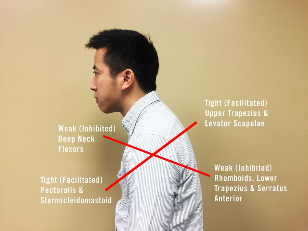 how to fix neck pain from looking down